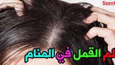 Photo of تفسير القمل في المنام